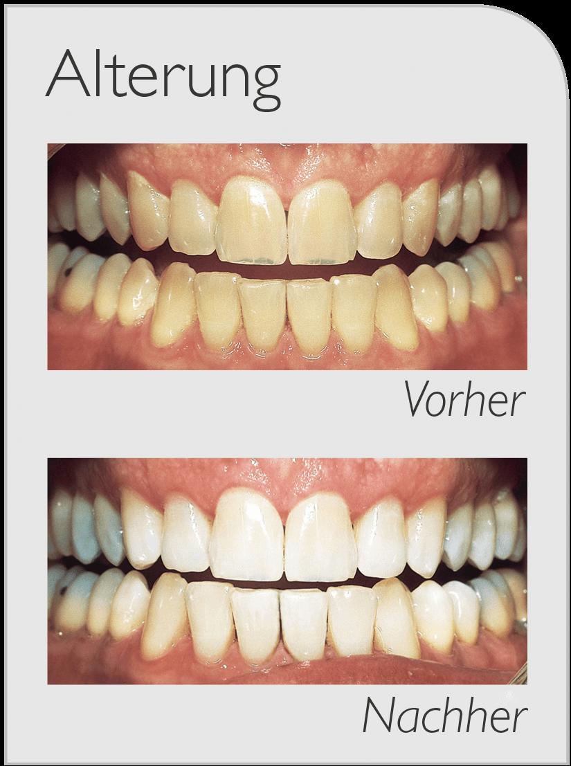 Durch Alterung verfärbte Zähne Vorher-Nachher Bild nach Bleaching