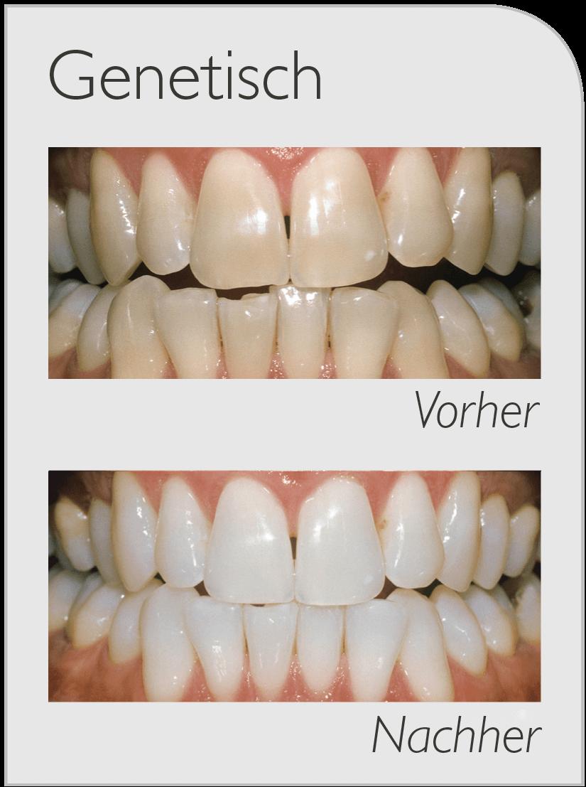 Genetische Verfärbung von Zähnen Vorher-Nachher Bild nach Bleaching