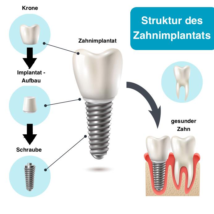 Struktur des Zahnimplantats