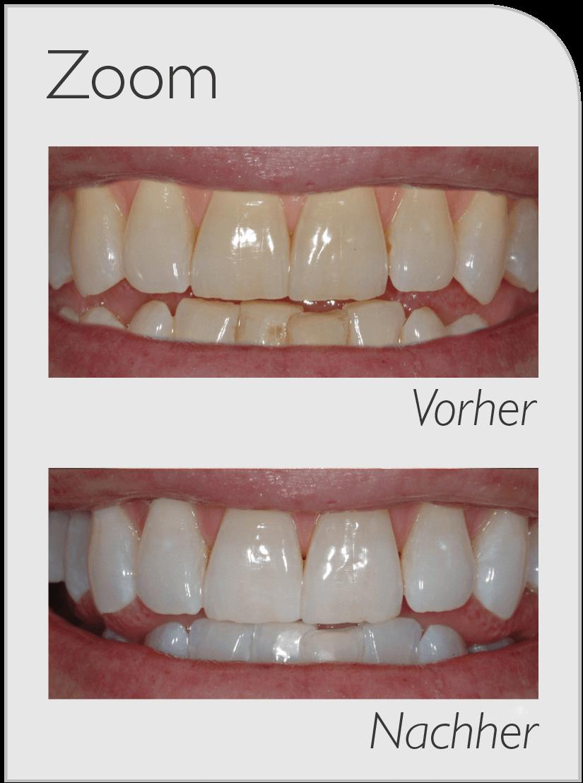 Vorher-Nachher Bild von Zähnen die mit Philips Zoom gebleacht wurden